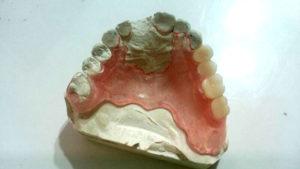 Dostawienia brakujących zębów i klamer